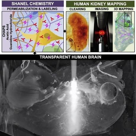 Transparent Human Brain