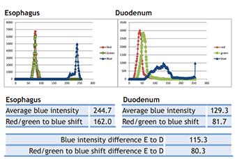UVLEDs-autofluorescence-barretts-disease-2
